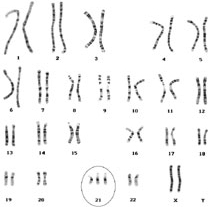 Image result for trisomy 21 karyotype